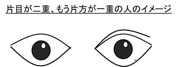 だけ 小さい 片目